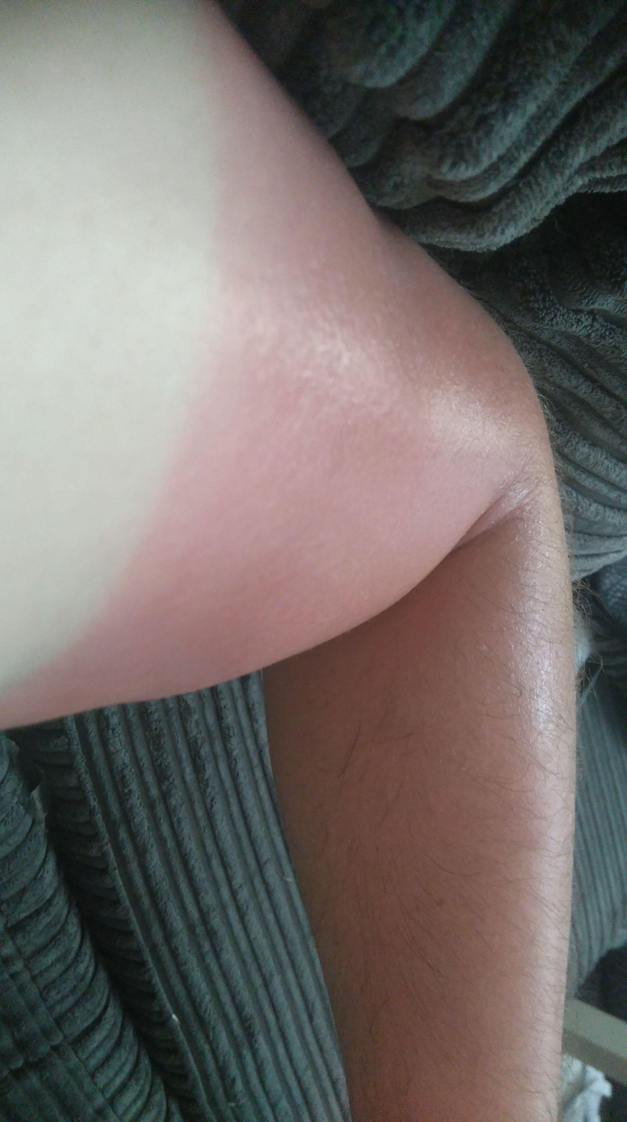 sun burn.jpeg